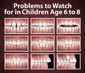 Orthodontic Concerns