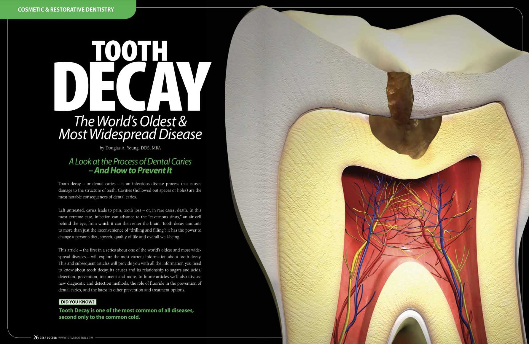 Tooth Decay -A Preventable Disease