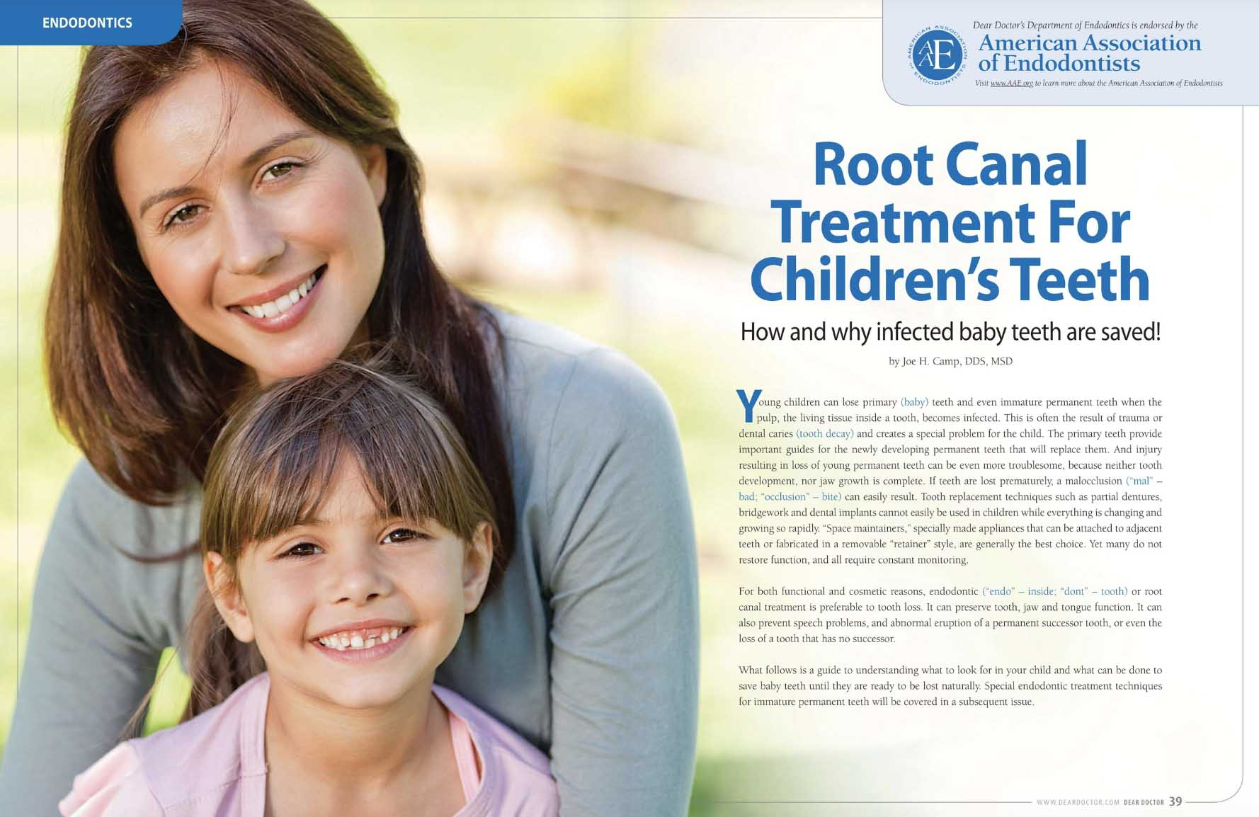 Root Canal Treatment for Children's Teeth