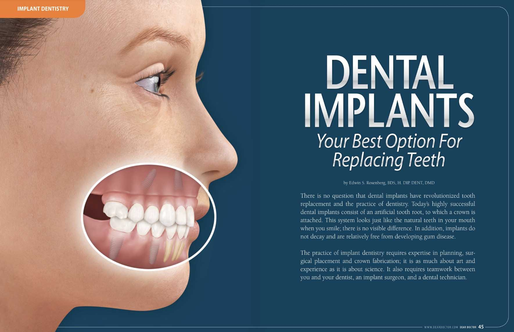 Dental Implants - Your Best Option For Replacing Teeth